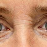 Evitar rugas nos olhos