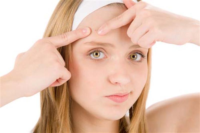 Problemas de acne