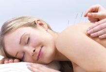 Terapias Orientais - acupuntura