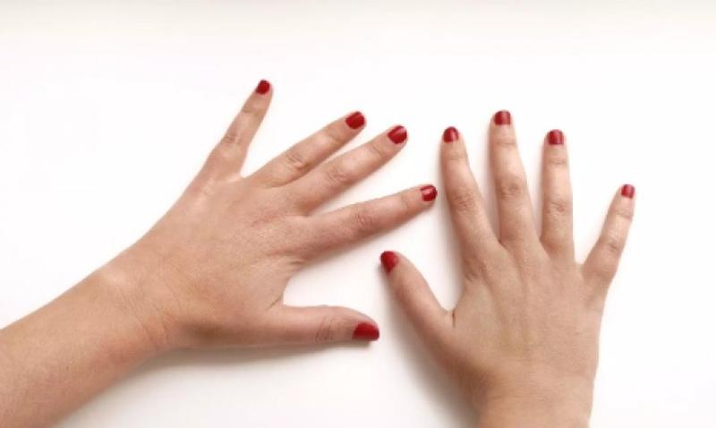 Artrite Reumatóide, a doença que afecta as articulações