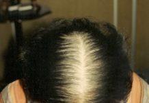 A calvície, conheça a causa e o tratamento para a queda do cabelo