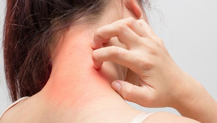 Anafilaxia, conheça melhor esta doença da hipersensibilidade