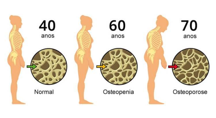 Osteoporose: Conheça melhor esta doença