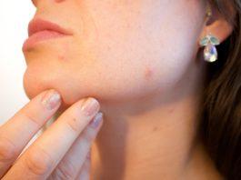Como combater as borbulhas durante a adolescência