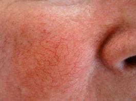 Couperose - o rubor da face em pessoas de pele sensível