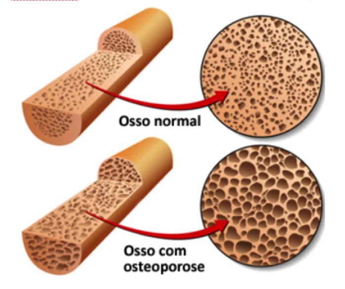 Osteoporoso, afeta mais as mulheres do que os homens