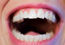 A importância da saúde oral nos doentes com SIDA