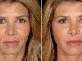 Botox: novas feições em alguns dias
