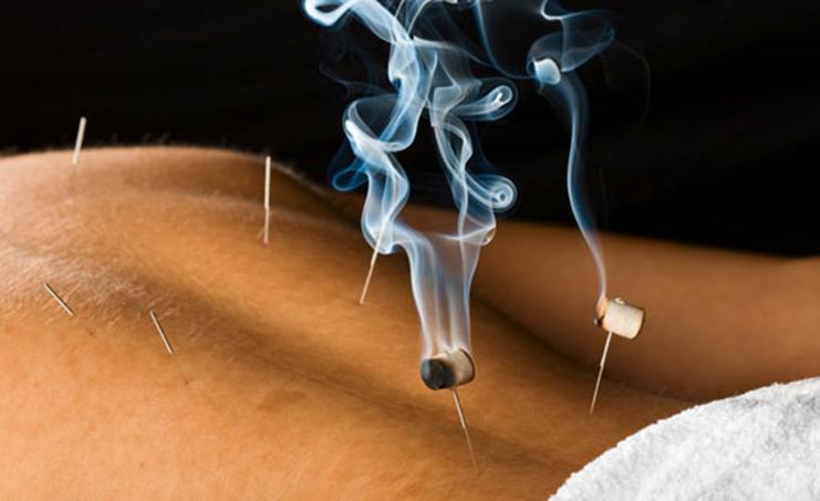 Moxabustão, conheça as aplicações desta técnica terapêutica